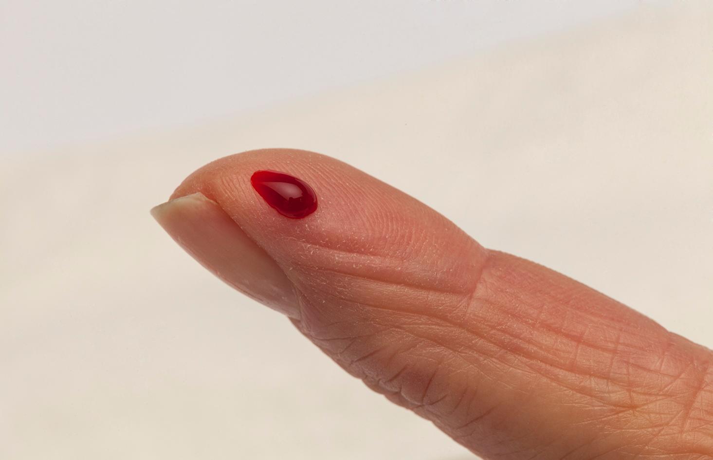 Aspect de la goutte de sang pour l'appareil de mesure INR