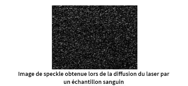 Image de speckle utilisée pour la surveillance anticoagulant
