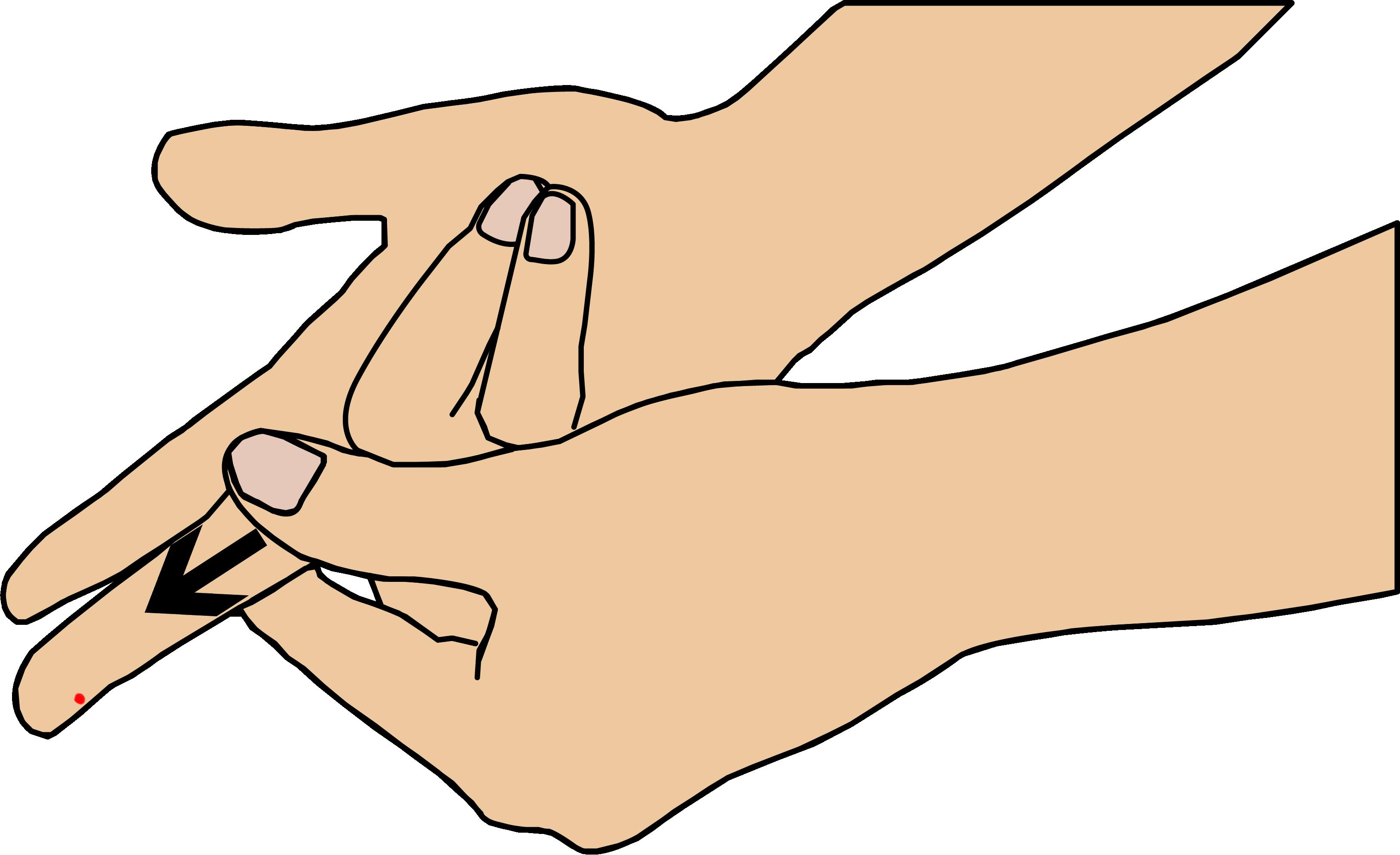 Comment obtenir une goutte de sang pour l'appareil de mesure INR