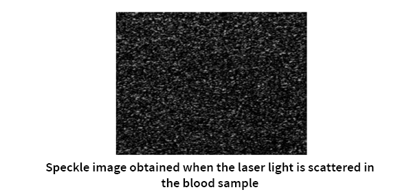 Speckle image used for warfarin monitoring